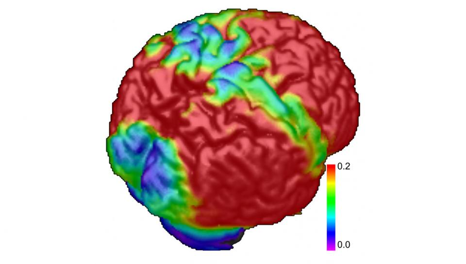 brain imaging showing early stages of Alzheimer's