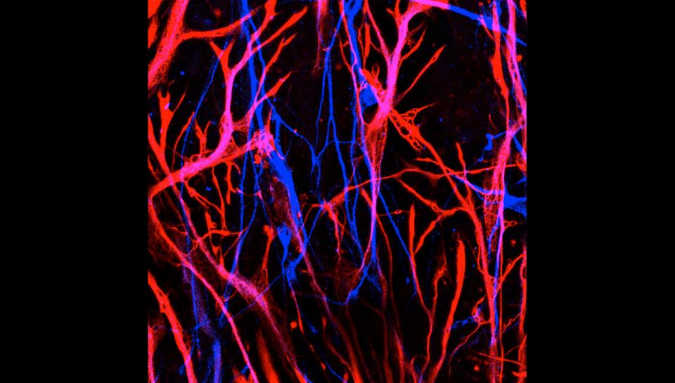 Neurons Created from Human Skin Cells