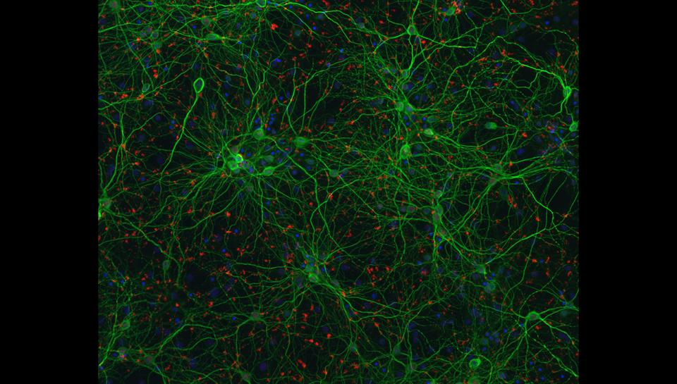 Mouse Neurons Used to Study Lou Gehrig's Disease