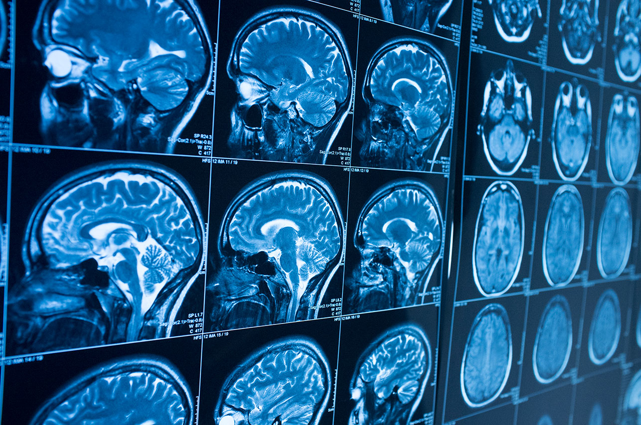 Will the First Blood Test for Concussions be a Game Changer?